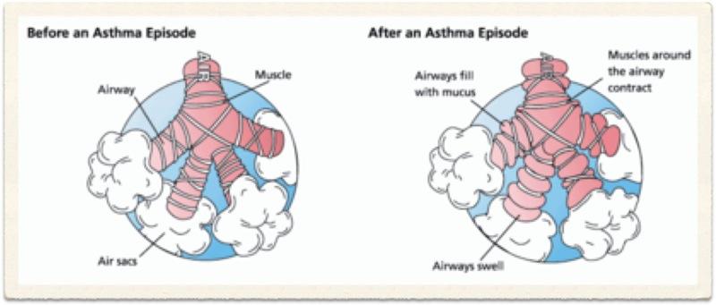 Clinical Anatomy     Lungs     Selcuk Tunali  MD  PhD